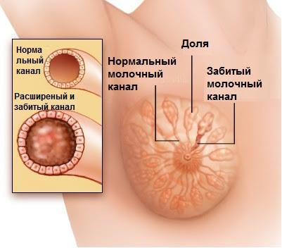 лактостаз, забитый проток молочной железы